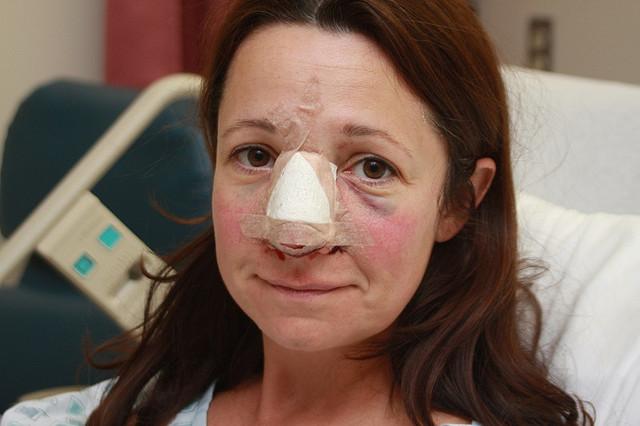 Lola Nose Job