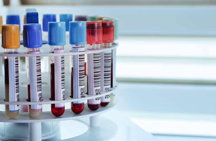 Synthetic blood transfusions