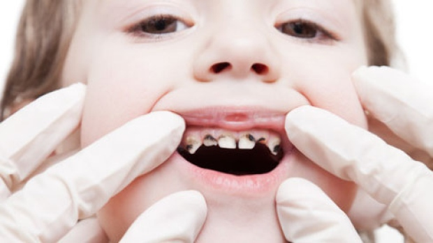 Child tooth removal