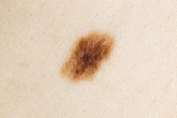 Accelerate melanoma spread