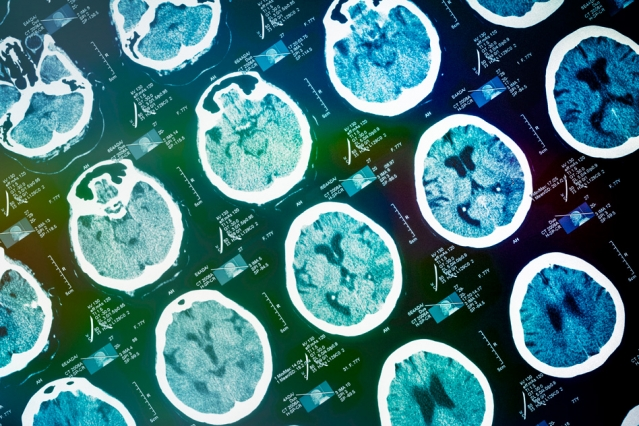 Brain scan may predict chance