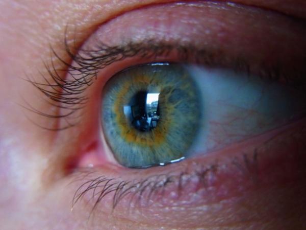 Ebola survivor had eye problems