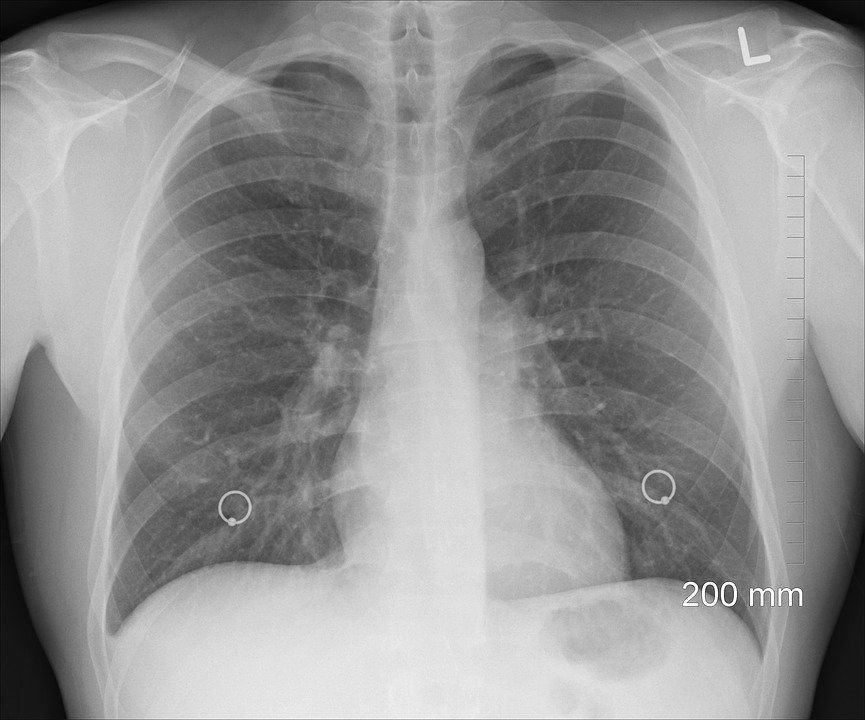 Your Lung Health