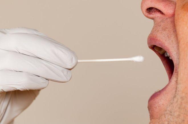 Prostate Cancer Spit Test