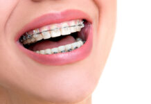 The Advantages of Dental Braces
