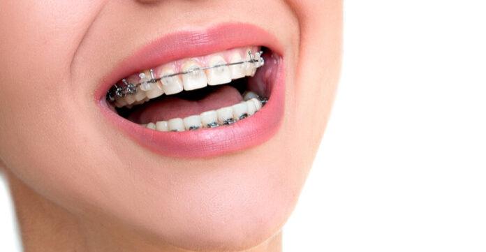 The Advantages of Dental Braces